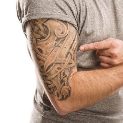 TattooRemoval